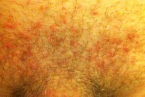 дерматит полового члена