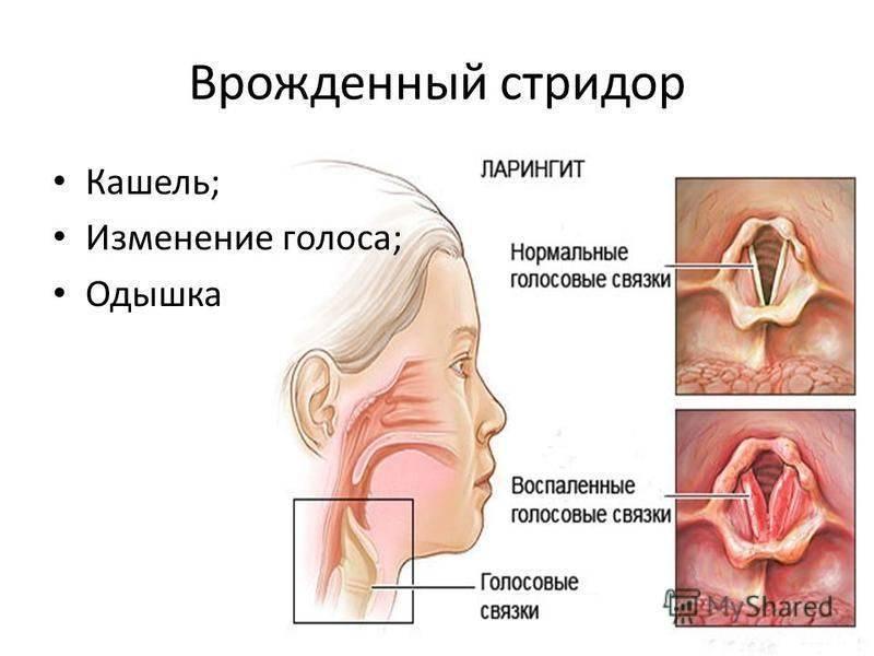 Острый ларинготрахеит у детей и взрослых - причины возникновения, симптомы, диагностика, препараты для лечения