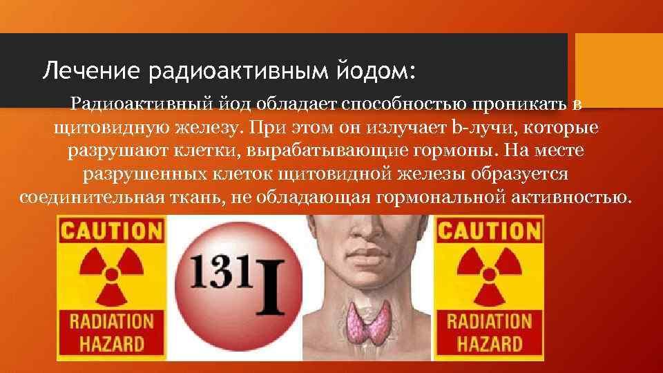 Лечение радиоактивным йодом после удаления щитовидной железы