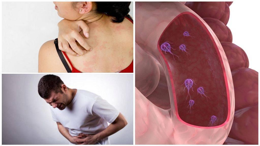 Лямблии у взрослых – пути заражения, симптомы и лечение