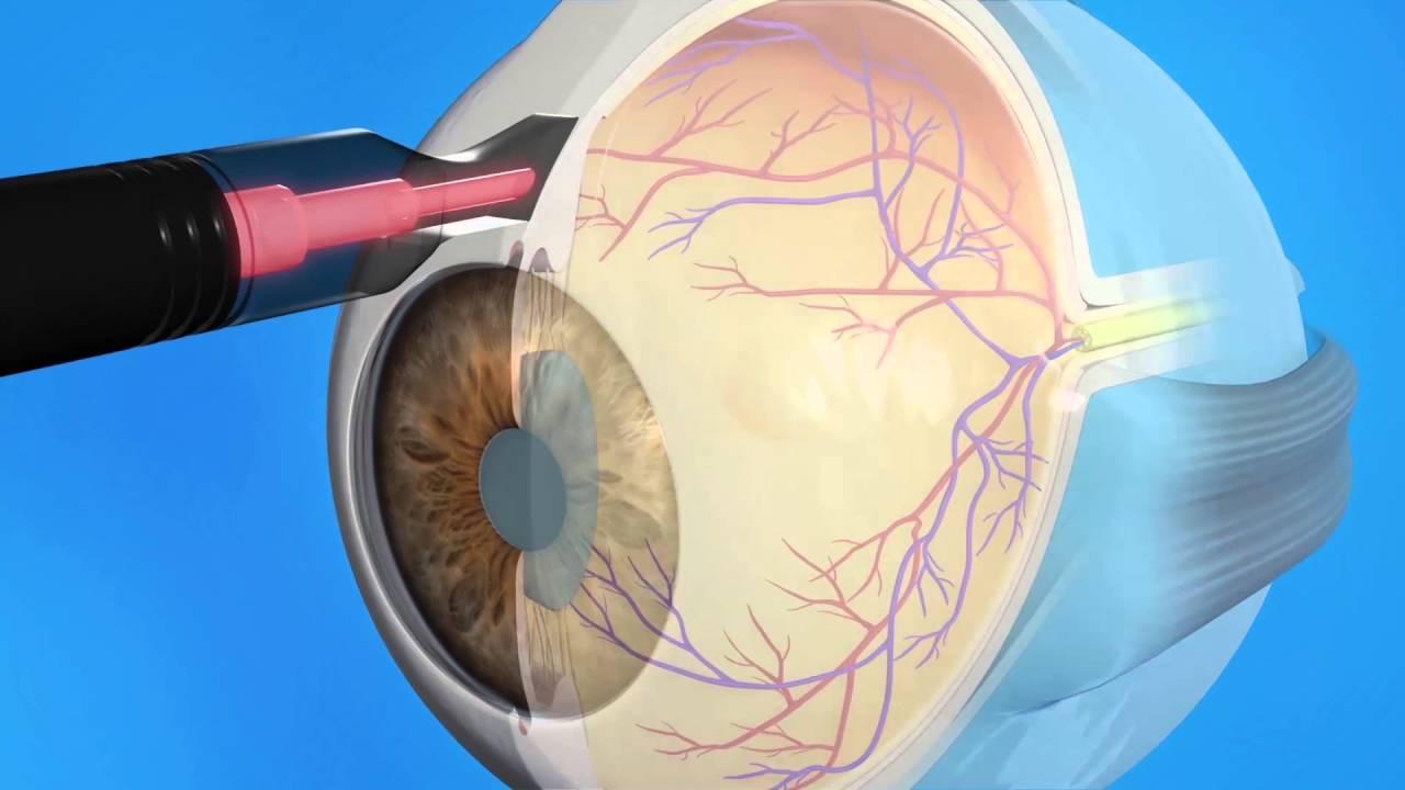 Что можно пить при глаукоме? противопоказаны препараты при повышенном вгд