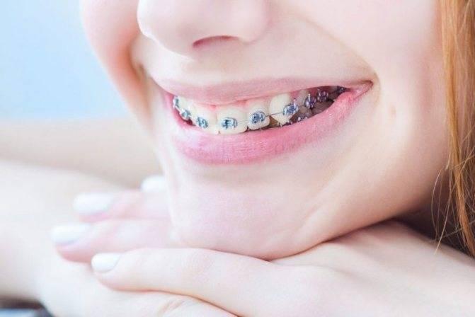 Что делать, если от брекетов болят зубы?