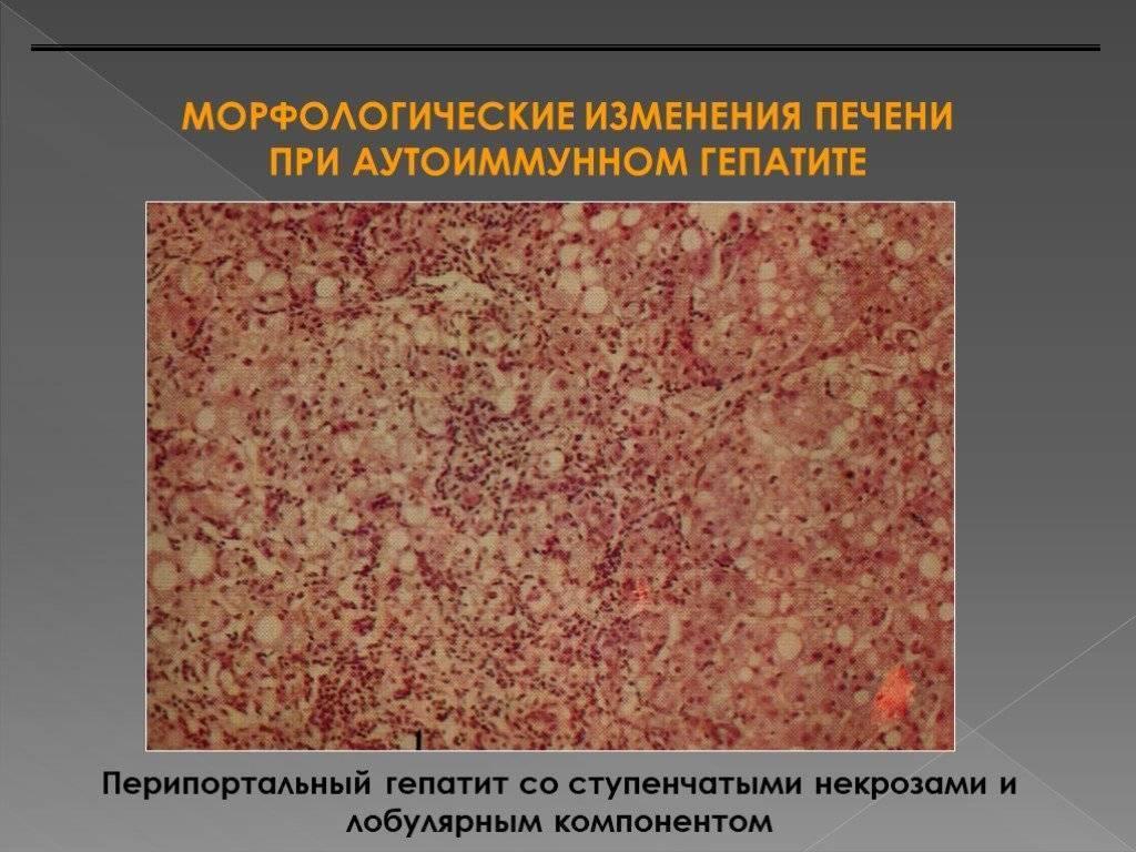 аутоиммунный гепатит прогноз выживаемости