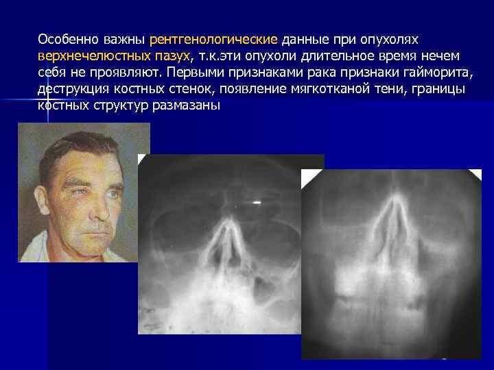 Рак носа: злокачественные опухоли полости и пазух, шансы на излечение, распознавание болезни на раннем этапе