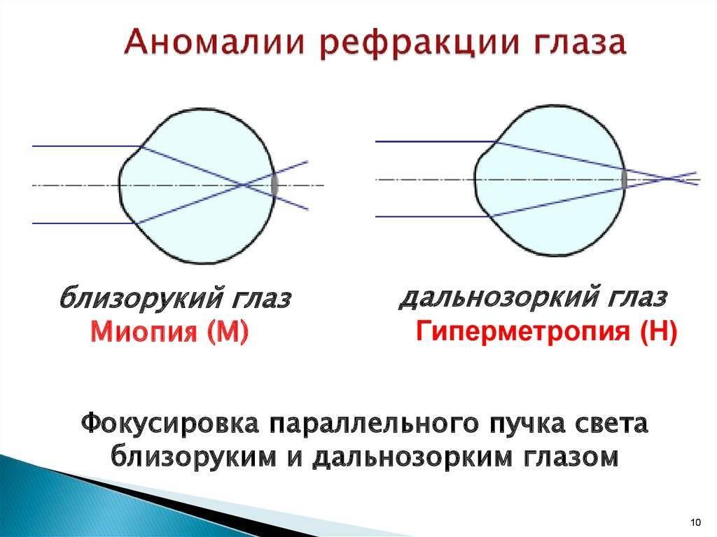 Основные сведения о рефракции глаза