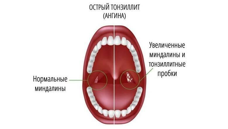 ангина и тонзиллит отличие