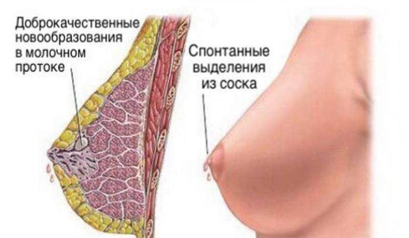 Почему болит грудь у кормящей мамы: мастопатия, лактостаз и другие причины
