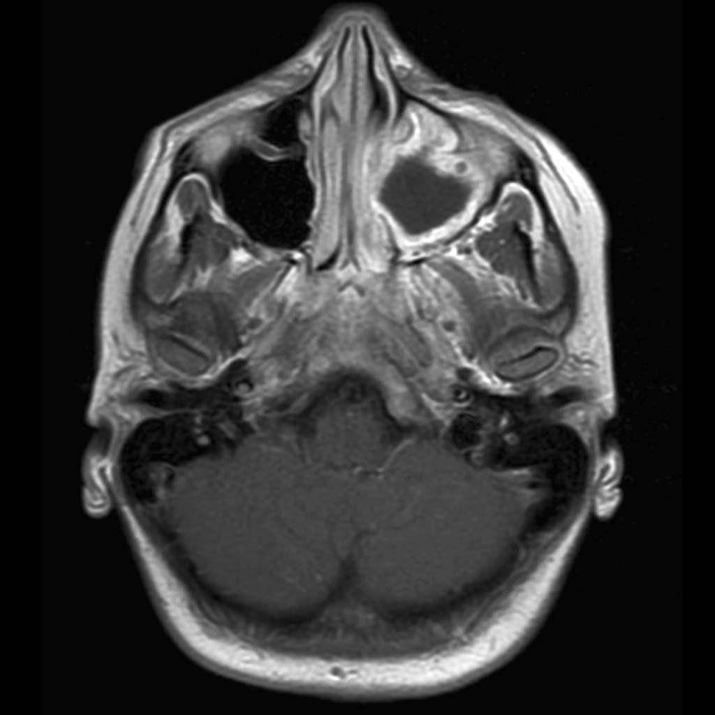 Компьютерная томография гайморовых пазух