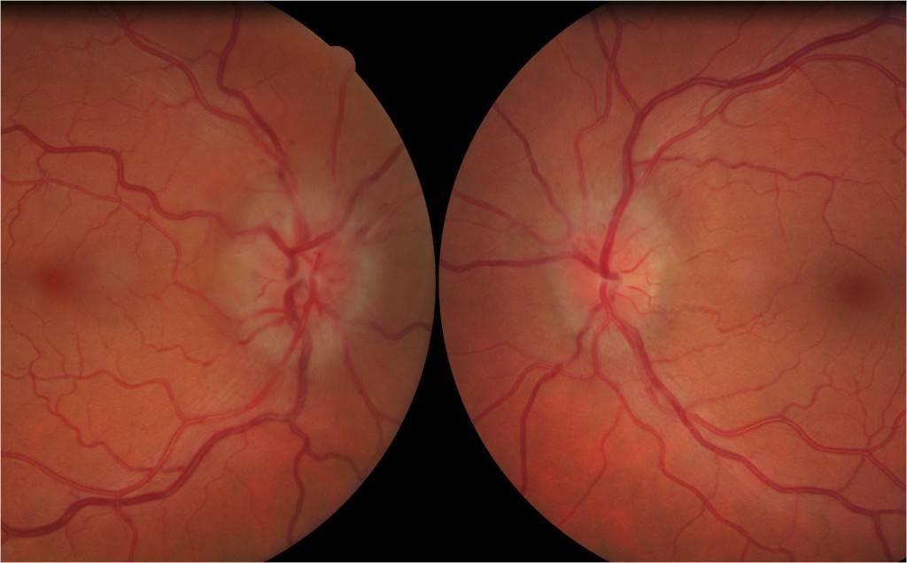 воспаление глазного нерва симптомы и лечение