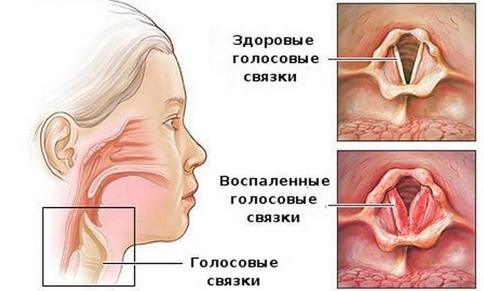 фаринголарингит лечение