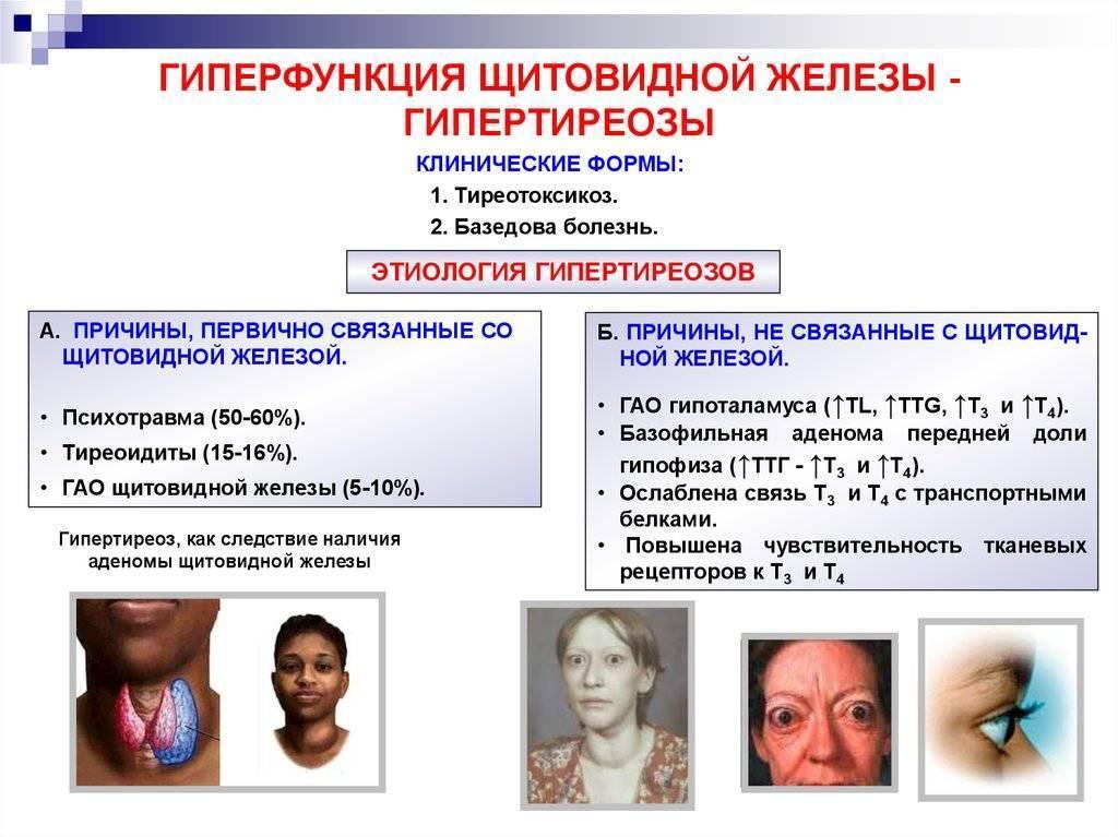 """""""тиреотоксикоз у женщин: характерные симптомы, методы лечения и препараты"""""""