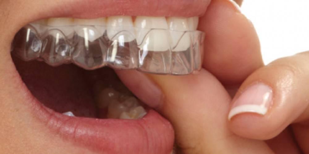 Кап после брекетов: сколько нужно и обязательно ли носить после снятия брекетов, фото спортивных ретейнеров для зубов, что лучше