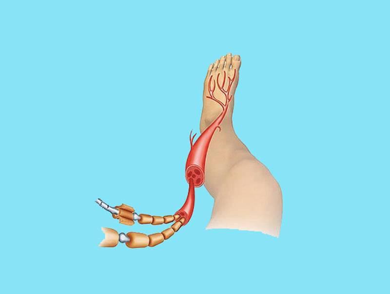 Нейропатия нижних конечностей: что это такое, симптомы и лечение в домашних условиях