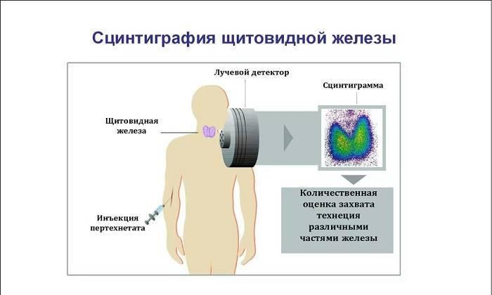 Сканирование щитовидной железы - радиоизотопное исследование