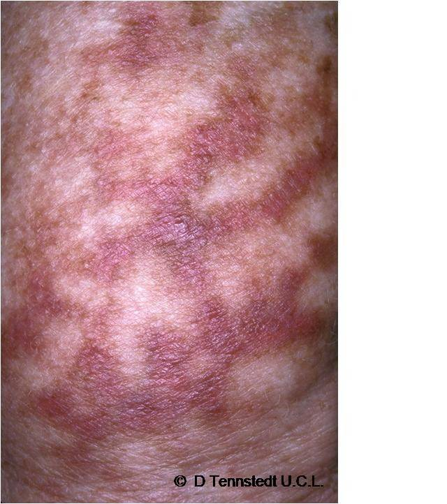 Лучевой дерматит и как его лечить