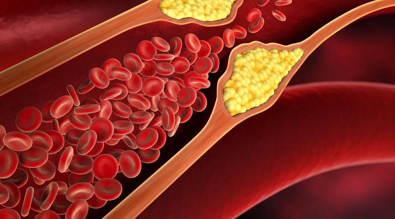 повышенный холестерин диабет