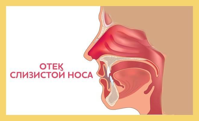 Отек носа, отекает слизистая: причины, лечение