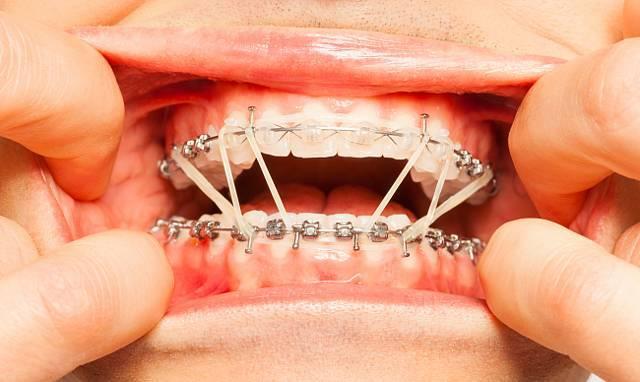 Болят зубы от брекетов. - как долго болят зубы после установки брекетов - запись пользователя юлия (__uliya__) в сообществе все о красоте в категории уход за зубами - babyblog.ru
