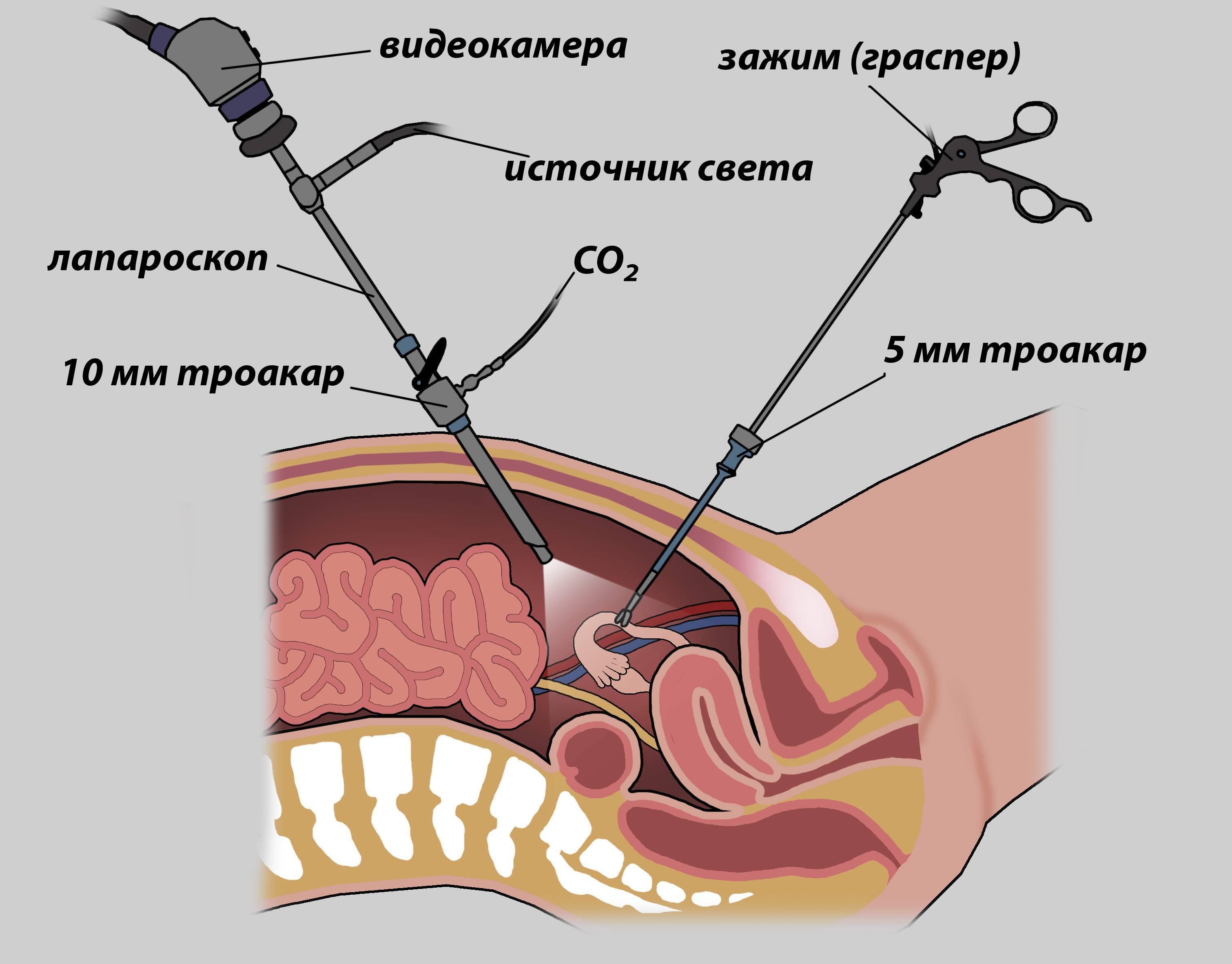 Болит правый бок под ребрами после удаления желчного пузыря