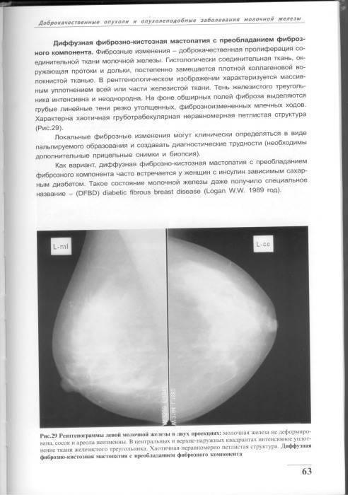 Как оценивают маммографию и что на снимке может найти врач