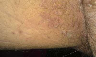 Высыпания на половом органе дерматит