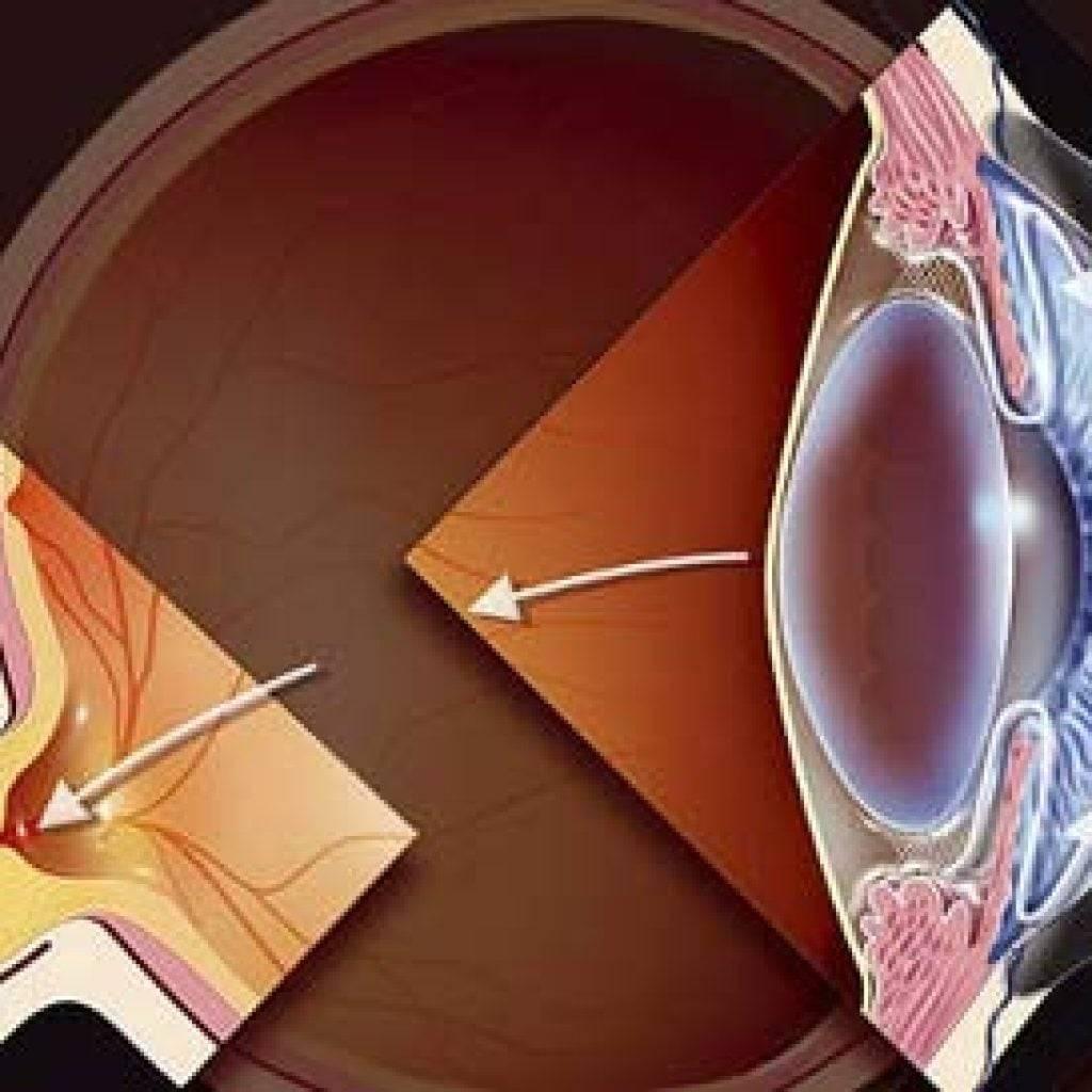 Продукты в рационе питания при глаукоме (диета) - советы офтальмолога