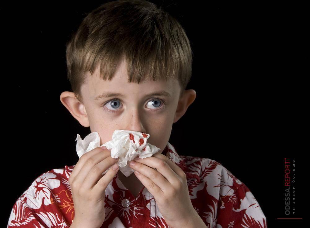 Почему у взрослых идёт кровь из носа ночью и утром