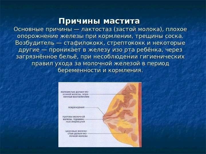 Симптомы и лечение лактостаза и мастита