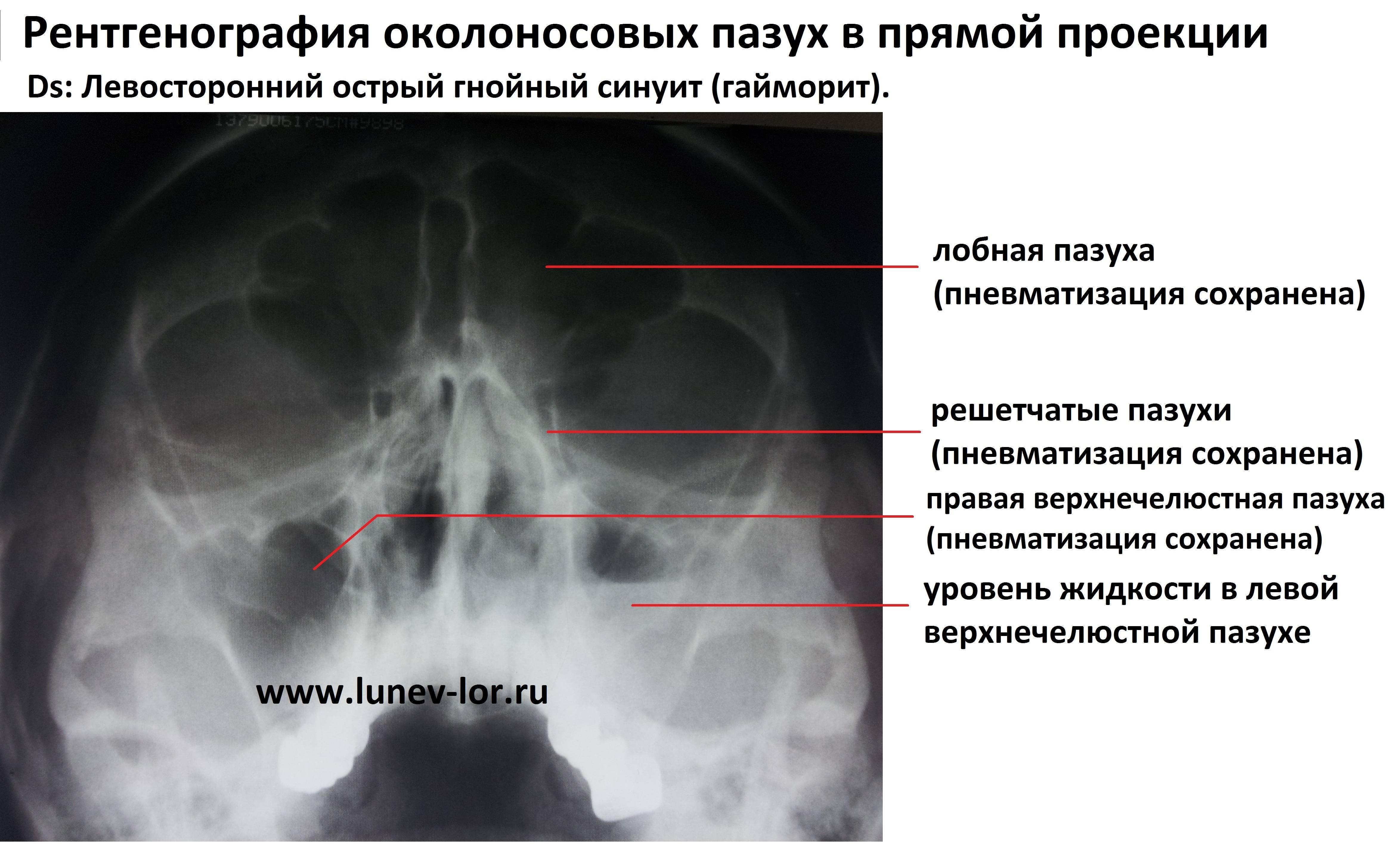 гайморит синусит