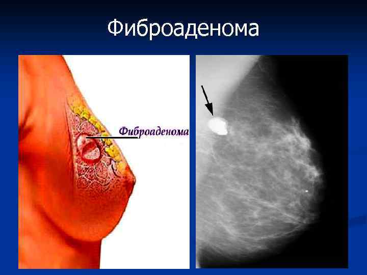 Симптомы и лечение фиброаденомы молочной железы
