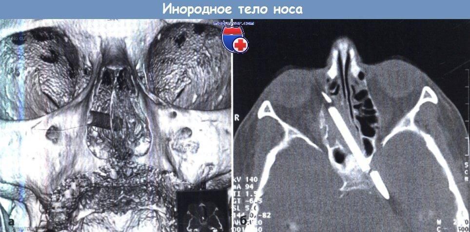как вытащить инородное тело из носа