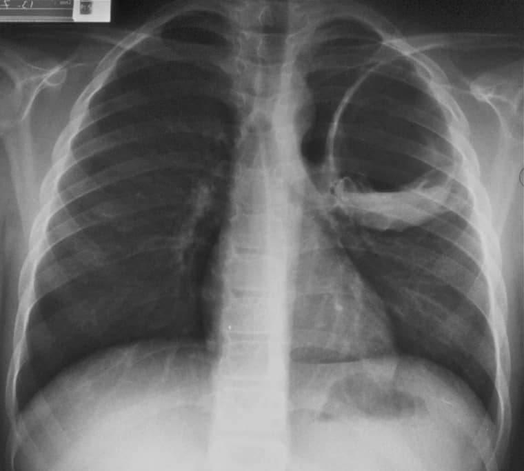Эхинококкоз: симптомы, лечение, операция, профилактика, гидатиозный и альвеолярный эхинококкоз