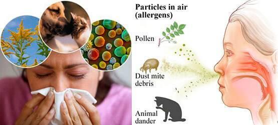 Зуд в носу: причины и лечение