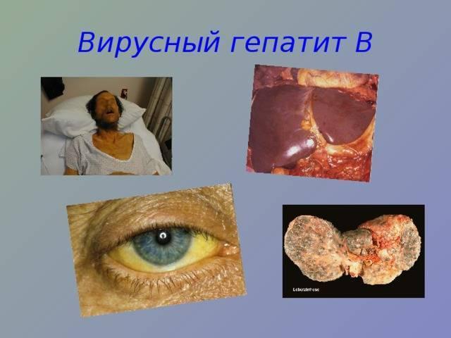 инкубационный период вирусного гепатита в
