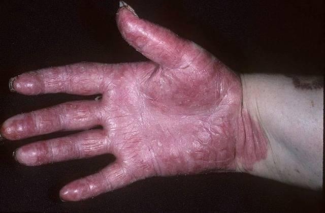 Пустулезный псориаз – что это за заболевание?
