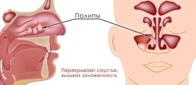 Полип в горле лечение — ooncologiya