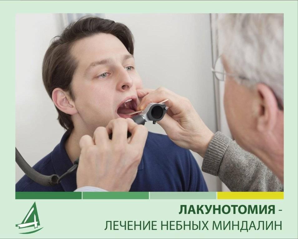 Хронический тонзиллит: причины, симптомы и лечение