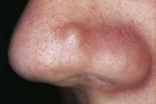 как проявляется стафилококк в носу