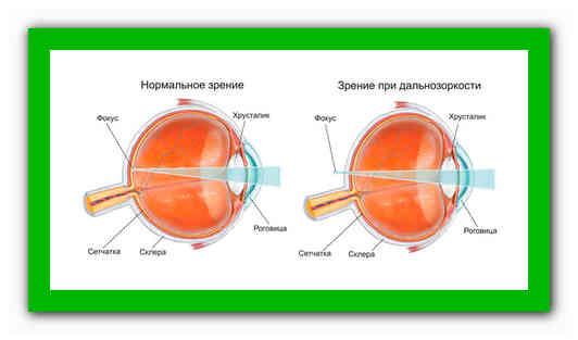 как улучшить зрение при дальнозоркости в домашних условиях