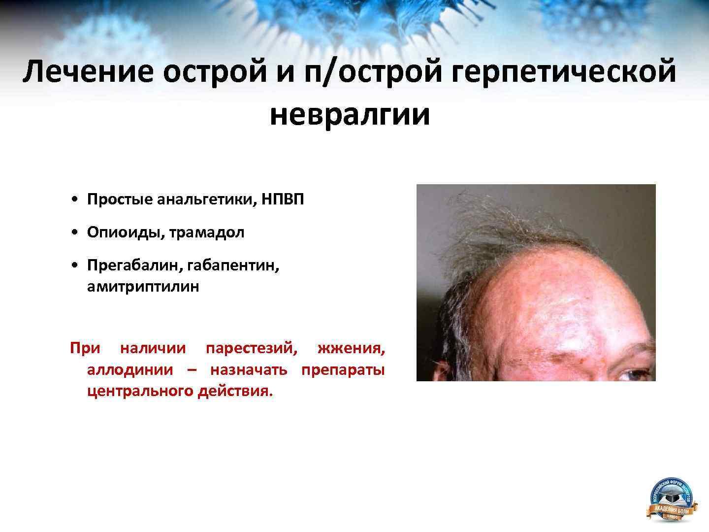 Герпетическая невралгия: причины и стадии развития, клиническая картина и лечение