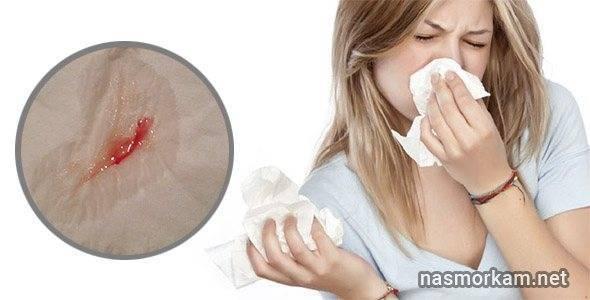 Причины появления крови из носа при беременности