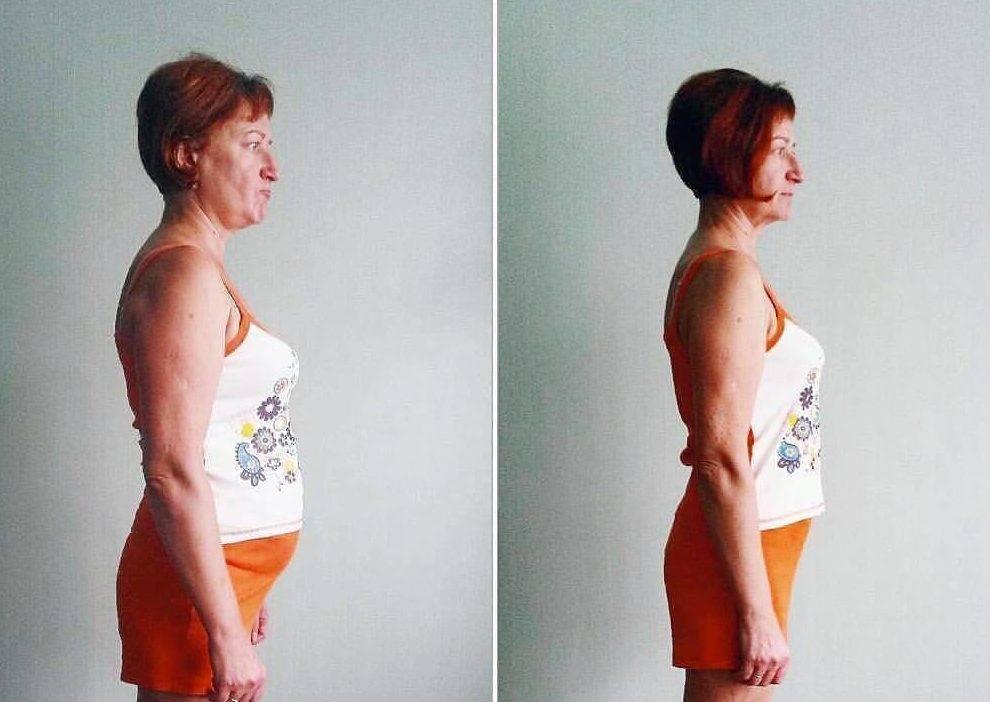как щитовидка влияет на вес