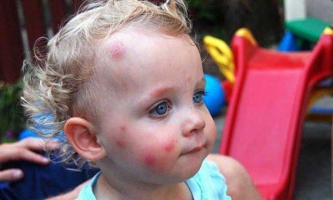 Опух глаз после укуса комара — ребенка укусил комар в глаз