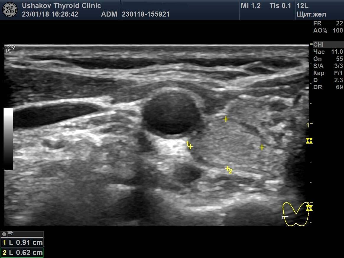 Усилен кровоток в щитовидной железе причины и лечение