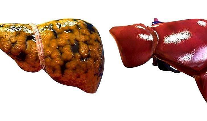 очаговый гепатоз печени