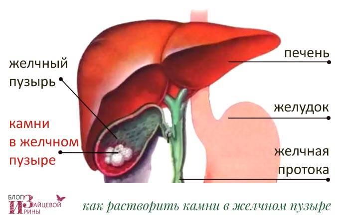 Выведение камней из желчного пузыря без операции