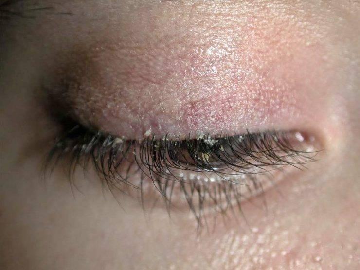 Клещи на ресницах глаз у человека: симптомы и лечение