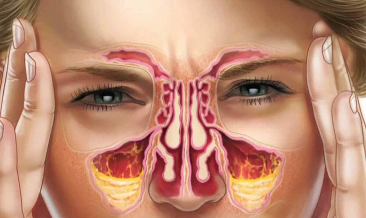 Лечение риносинусита – современный подход и эффективные препараты