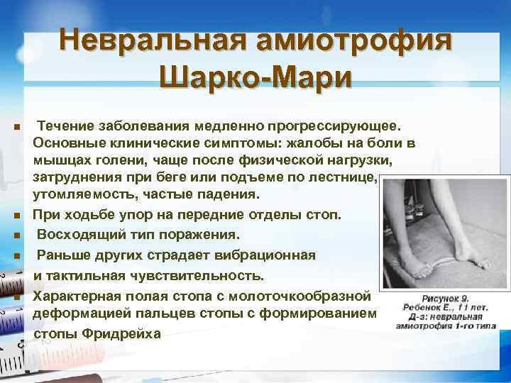 Невральная амиотрофия шарко–мари–тута - симптомы болезни, профилактика и лечение невральной амиотрофии шарко–мари–тута, причины заболевания и его диагностика на eurolab