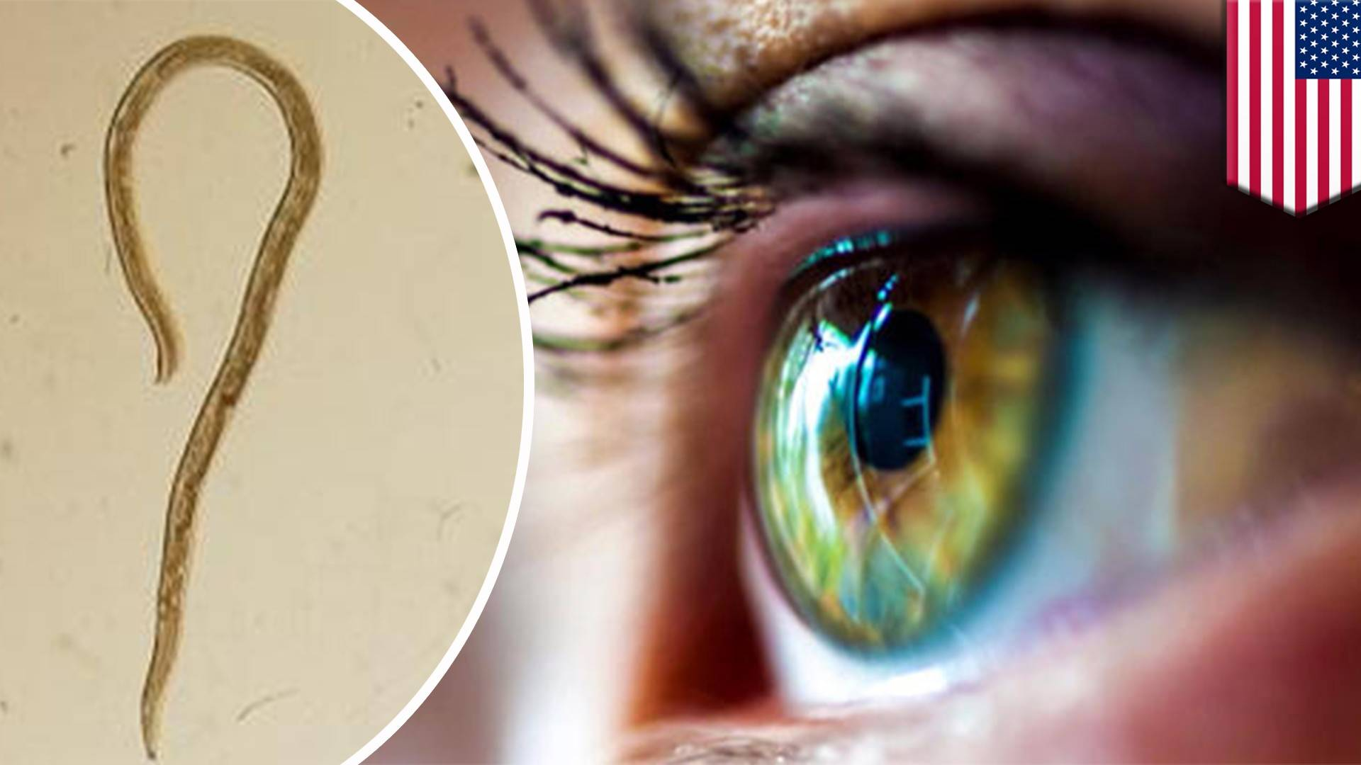 как избавиться от паразитов в глазах